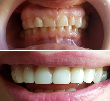 Before & After - Fatete de zirconiu