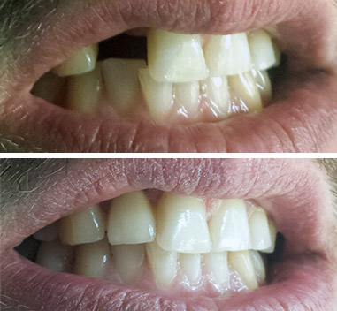 Before & After- Coroană de zirconiu pe implant incisiv lateral